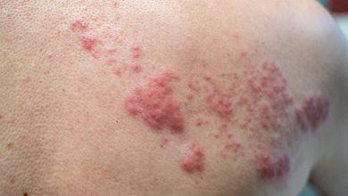 Photo of أخطر من كورونا.. فيروس الهربس يهدد العالم بعد ظهوره في الهند